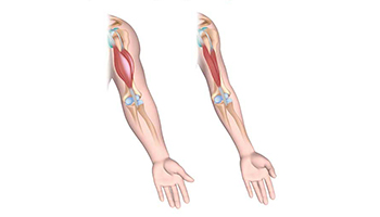 Increases both muscle mass and bone mineral density